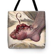 Gout, 1799 Tote Bag