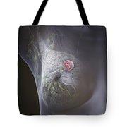 Lump In The Breast Tote Bag
