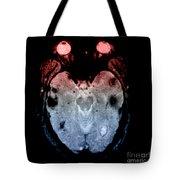 Mri Of Amyloid Angiopathy Tote Bag