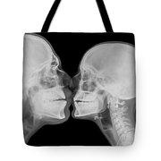 X-ray Kissing Tote Bag