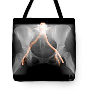 X-ray Of Pelvis With Arteries Tote Bag