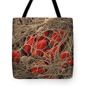 Blood Clot Tote Bag