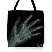 Bones Of The Hand Tote Bag