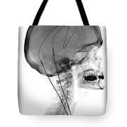 Deep Brain Stimulating Electrodes, X-ray Tote Bag