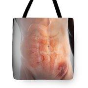 Inguinal Hernia Tote Bag