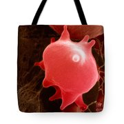 Red Blood Cell In Hypertonic Solution Tote Bag
