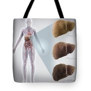 Stages Of Liver Disease Tote Bag