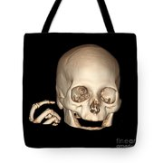 3d Ct Reconstruction Of Head And Hand Tote Bag
