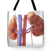 Polycystic Kidney Tote Bag