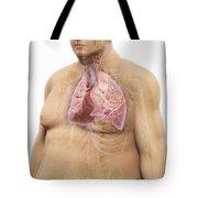 Obesity Tote Bag