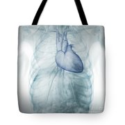 Heart Within The Chest Tote Bag