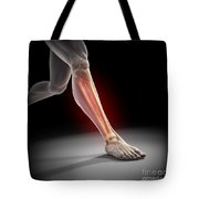 Medial Tibial Stress Syndrome Tote Bag