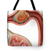 Ampulla Pregnancy Tote Bag