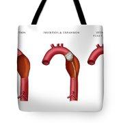 Aortic Aneurysm Stent, Illustration Tote Bag
