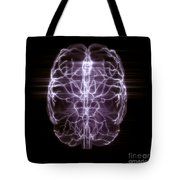 Blood Supply To The Brain Tote Bag