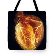 Colored Arteriogram Of Arteries Of Healthy Heart Tote Bag