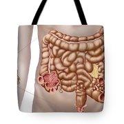 Diverticulitis In The Descending Colon Tote Bag by Stocktrek Images