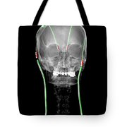Enhanced Parkinsons Disease With Dbs Tote Bag