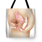 Female Vesicovaginal Fistula, Cross Tote Bag