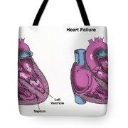 Healthy Heart Vs. Heart Failure Tote Bag