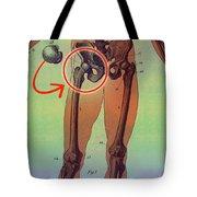 Hip Replacement Tote Bag