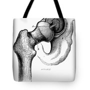 Human Hip Joint Tote Bag