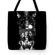 Metastatic Disease Pet Scan Tote Bag