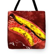 Microscopic View Of Fat Plaque Tote Bag