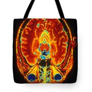 Mri Of Brain Tote Bag