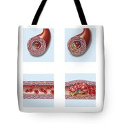 Normal Artery Compared To Plaque Tote Bag