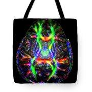 Normal Brain Diffusion Tractography Tote Bag
