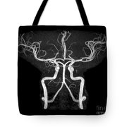 Normal Intracranial Mra Tote Bag