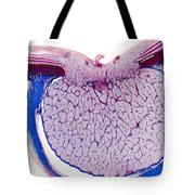 Optic Disk And Optic Nerve, Lm Tote Bag