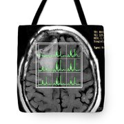 Post Operative Mr Spectroscopy For Gbm Tote Bag