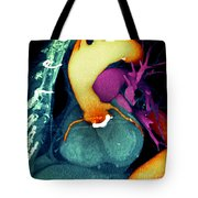 Prosthetic Heart Valve 3d Ct Scan Tote Bag