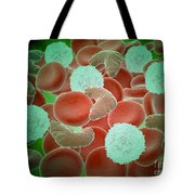 Sickle Cell Anemia With Red Blood Cells Tote Bag