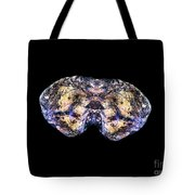 Spider Bites Butterfly Tote Bag