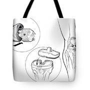 Total Knee Replacement Prosthetic Tote Bag