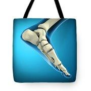 X-ray View Of Bones In Human Foot Tote Bag