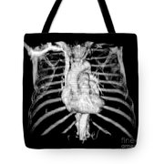 3d Ct Reconstruction Of Heart Tote Bag by Medical Body Scans
