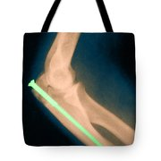 Broken Arm With Metal Pin, X-ray Tote Bag