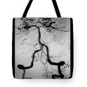 Cerebral Angiogram Tote Bag