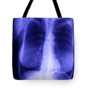 Chest X-ray Of Female Tote Bag