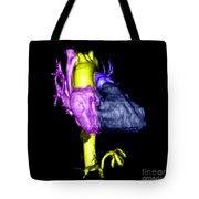 Color Enhanced 3d Cta Of Heart Tote Bag