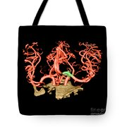 Ct Angiogram Of Aneurysm Tote Bag