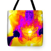 Double Hip Replacement Tote Bag