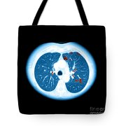 Emphysema On Ct Chest Tote Bag