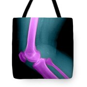 Lateral X-ray Of The Knee Tote Bag