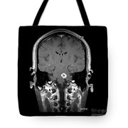 Mri Of Acute Ms Tote Bag