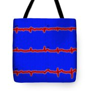 Normal Ecg Tote Bag